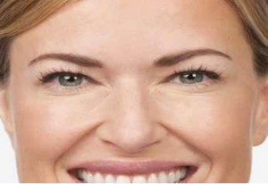 Advanced BOTOX techniques at Power MD lift the brows, erase lines and wrinkles.