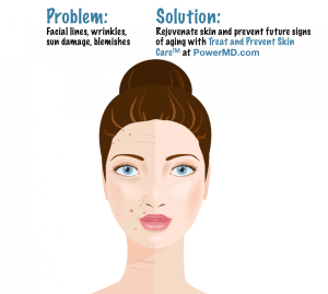 Power MD in Marin County treats and prevents facial aging lines and wrinkles