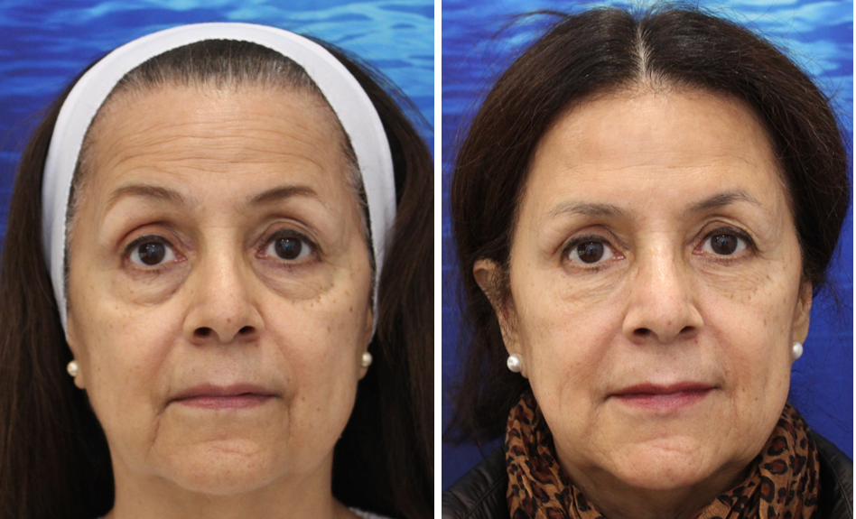 Restore Youth with Facial Fillers in Marin County