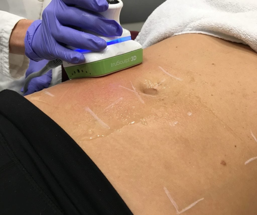 TruSculpt 3D treatment for lower abdomen
