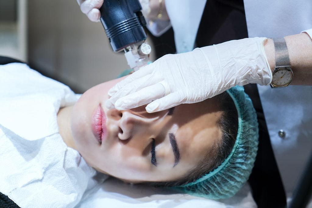 Woman having RF microneedling treatment