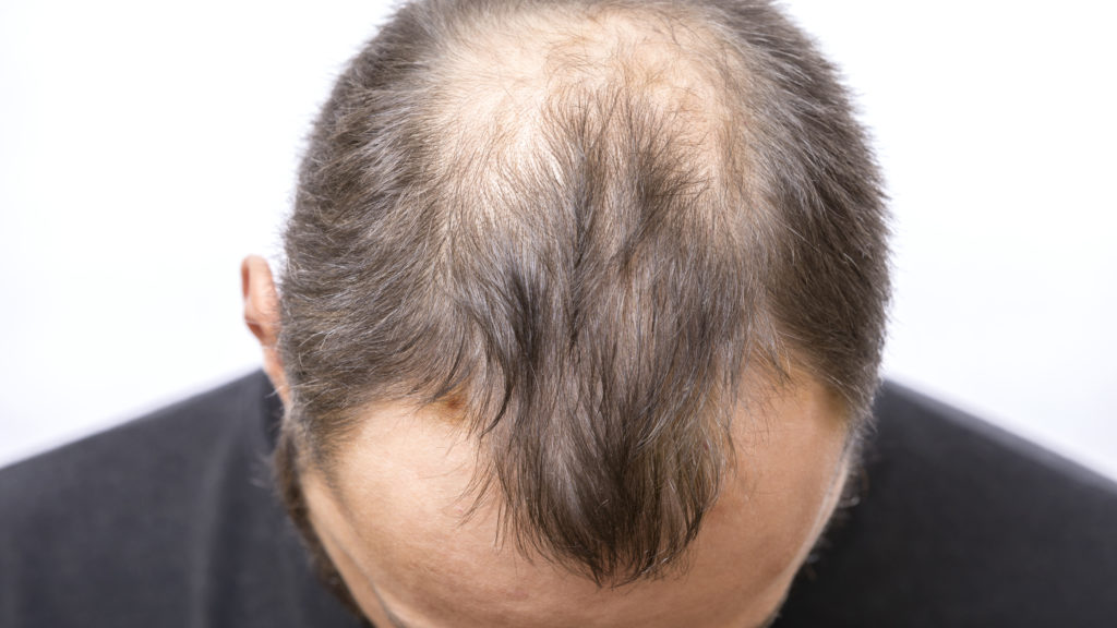 An image of the top of a young mans balding head, a hair loss problem.