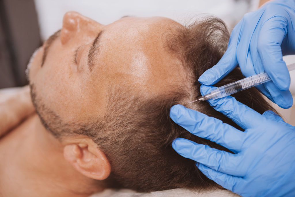 Close up of a mature man receiving hair loss treatment injections in scalp by professional trichologist. Dermatologist doing scalp injections for mature male client with alopecia problem.