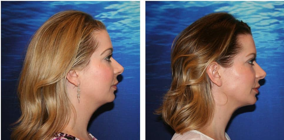 kybella chin before and after