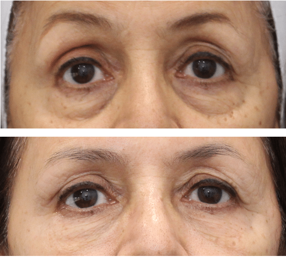 undereye filler before and after
